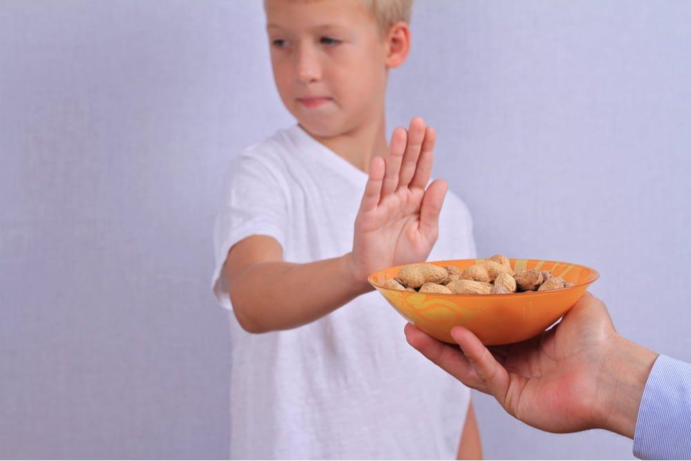The basics of a peanut allergy